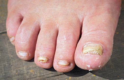 Onycosolve: Abhilfe, Die Gegen Nagelpilz Funktioniert